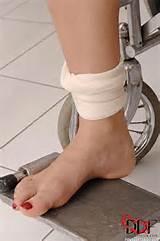 Mira Sunset bound patient in wheelchair gets her holes worked